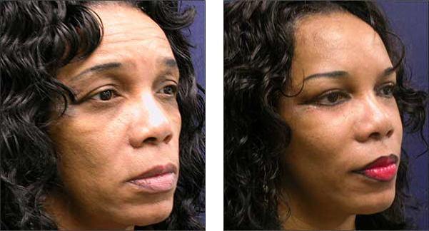 Chicago facelift surgeon cosmetic