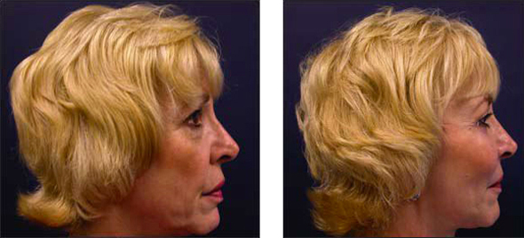 facelift surgeon cosmetic surgery
