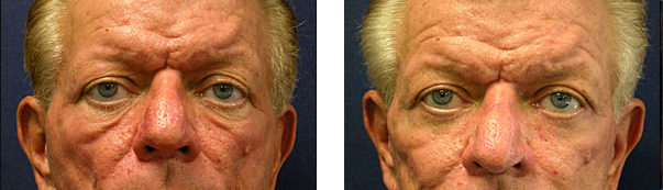 Chicago facelift surgeon cosmetic surgery