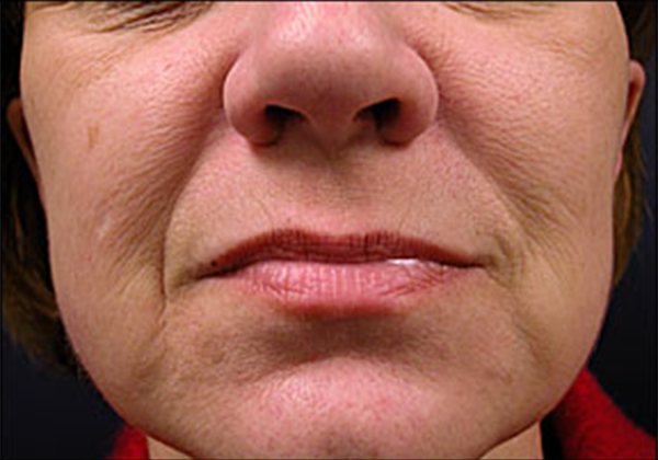 lower blepharoplasty
