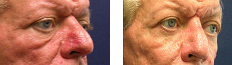 Chicago facelift surgeon