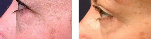 minimal incision facelift