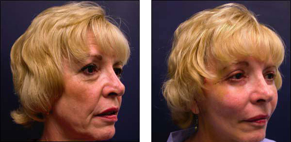 chicago facelift plastic surgery
