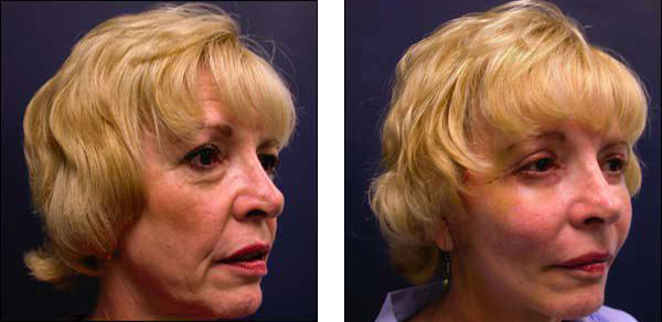 lower facelift and necklift
