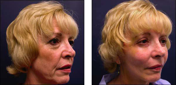 facelift surgery chicago